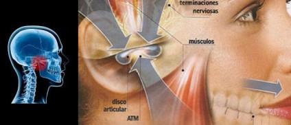 Disfunciones en la ATM (articulación temporomandibular)